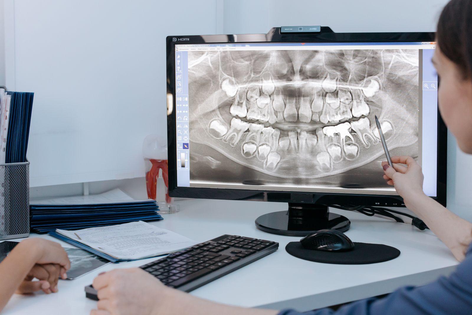 οδοντιατρική ακτινολογία