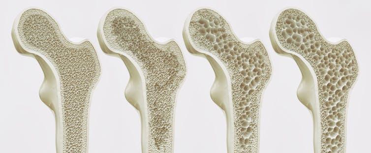 πώς παθαίνουν τα οστά οστεοπόρωση