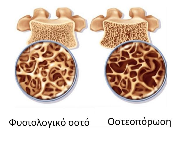 Φυσιολογικό οστό και οστό με οστεοπόρωση