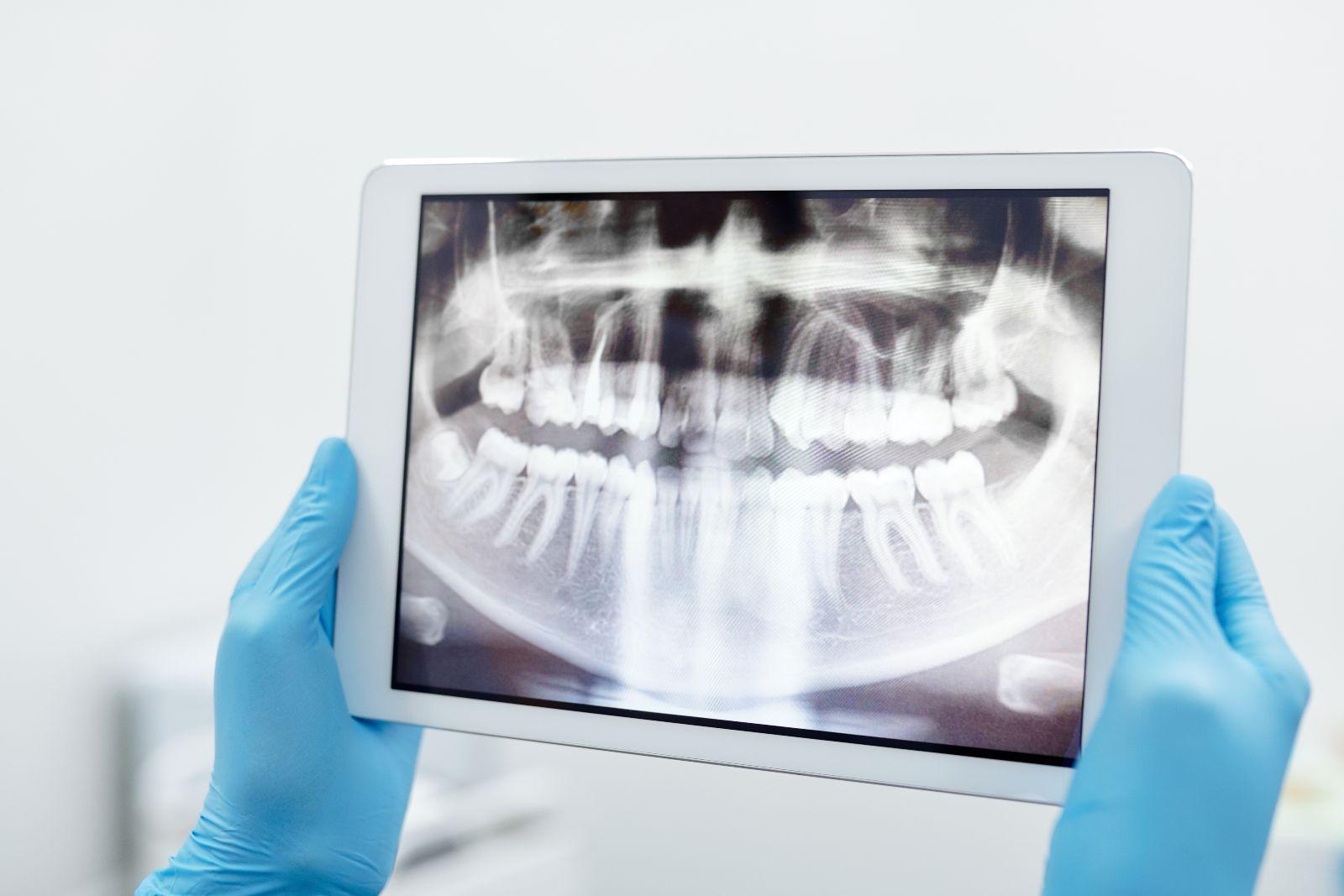 οδοντιατρική απεικόνιση